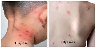 Sốt xuất huyết sốt vàng da 2trong10 virus nguy hiểm nhất thế giới